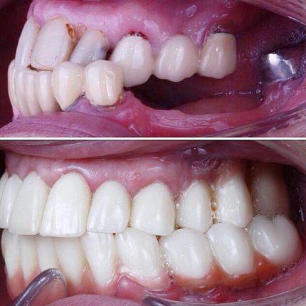 Срок службы зубного импланта🔧🤓
