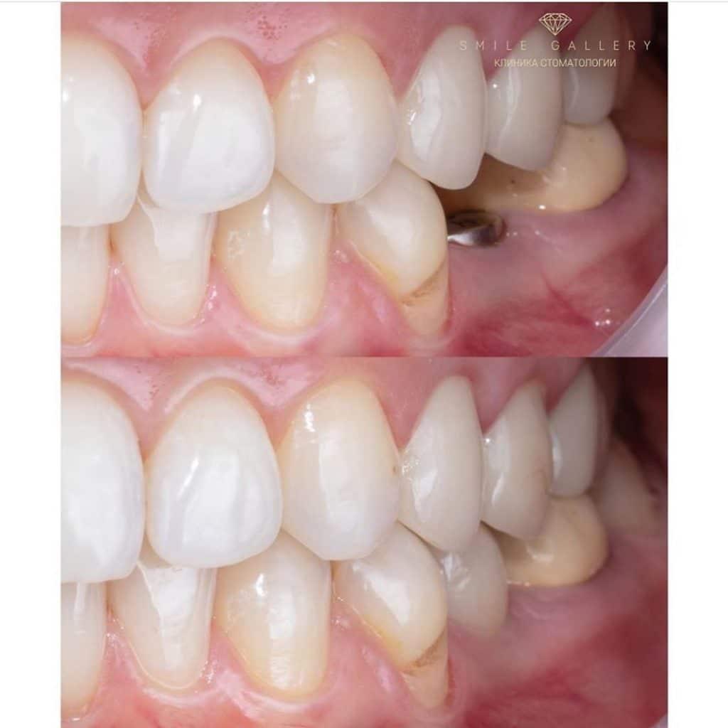 Имплантация зубов - самые распространённые страхи