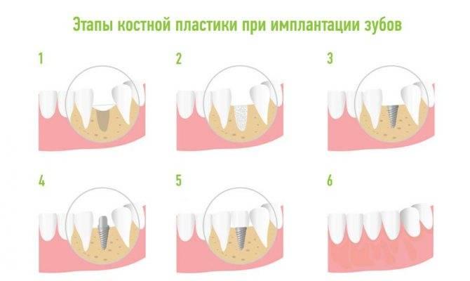 Пластика мягких тканей вокруг имплантата