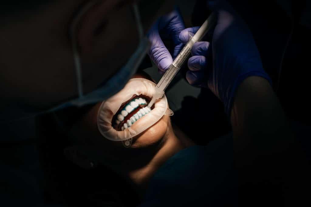 Отбеливание зубов Zoom. Польза и вред.
