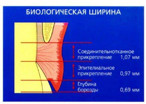 Ортодонтический словарь. Часть 3