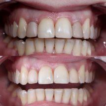 Эндодонтическое отбеливание зубов ⚪